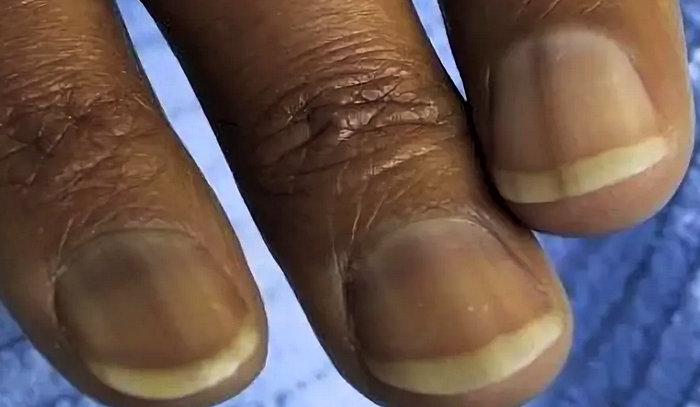 ногти при Аддисоновой болезни - пигментация