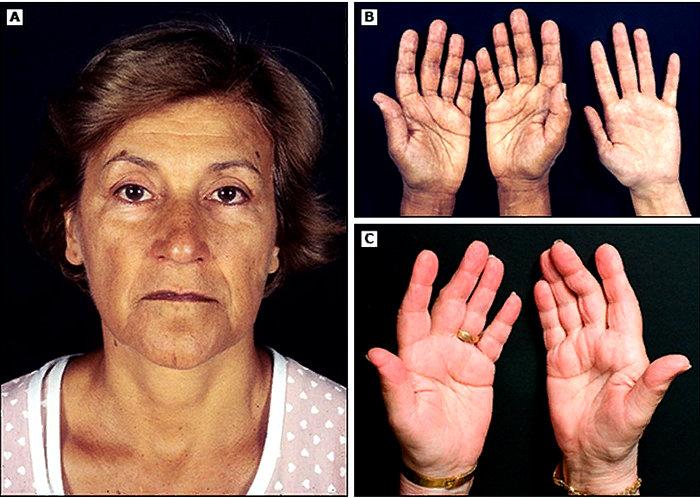 симптомы бронзовой болезни