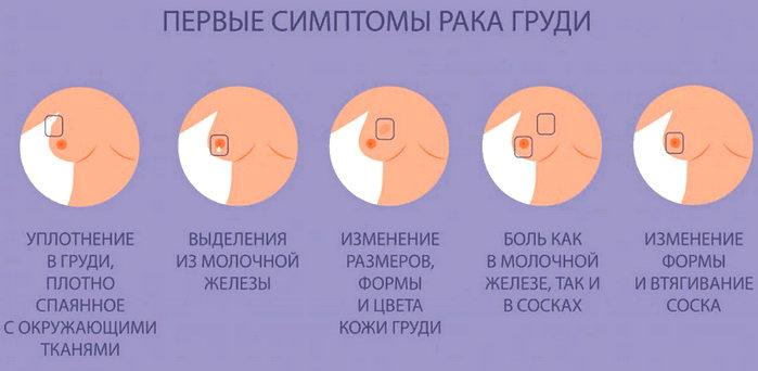 первые симптомы рака груди