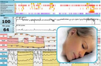 диагностика нарушений сна