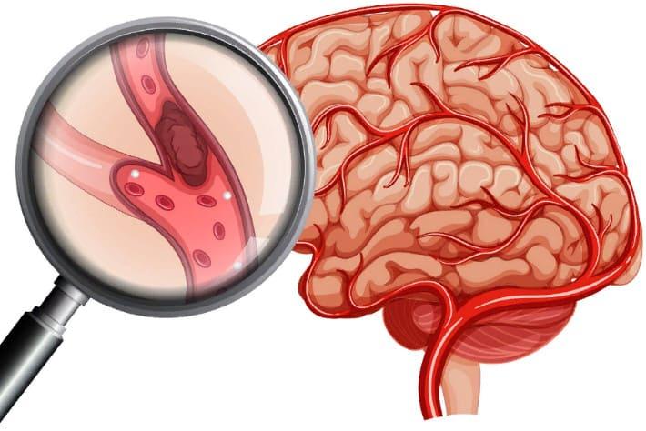 ишемический инсульт - лечение