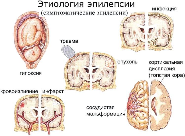 причины развития эпилепсии, этиология