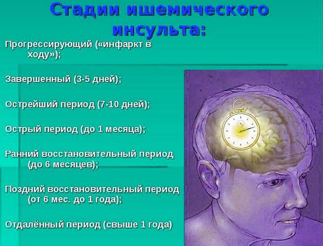 стадии ишемического инсульта