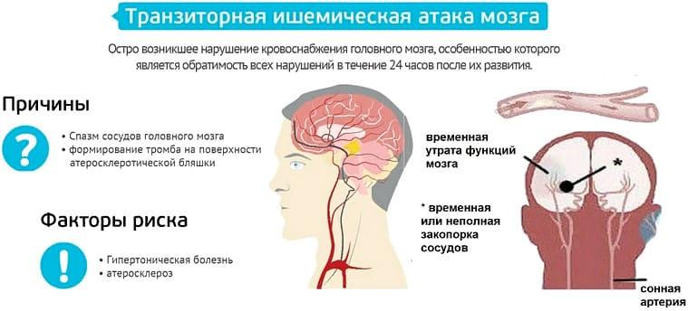 ТИА микроинсульт - симптомы и лечение