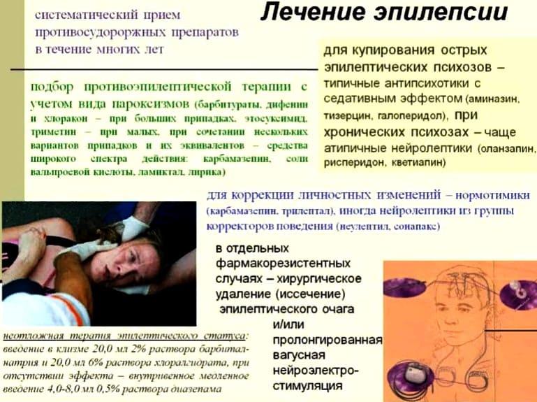 варианты лечения эпилепсии