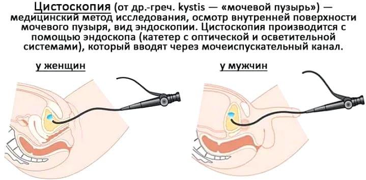 что такое цистоскопия, как проводят у мужчин и женщин